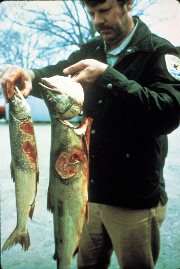 Lamprey wound human