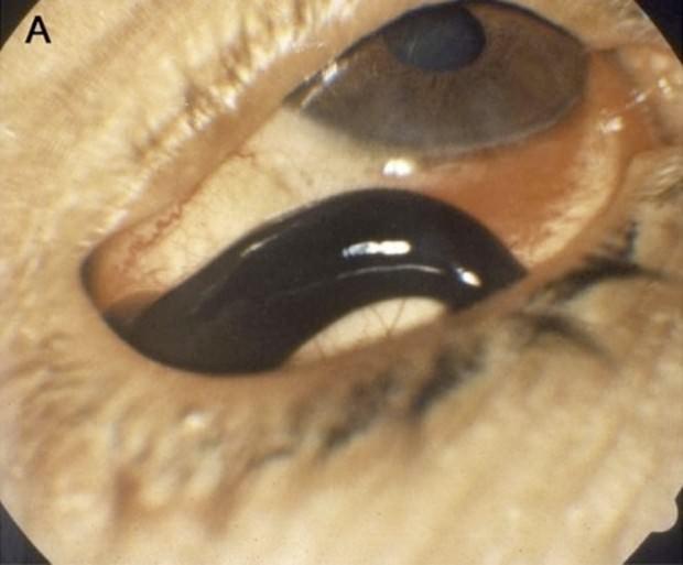паразиты в горле человека симптомы фото