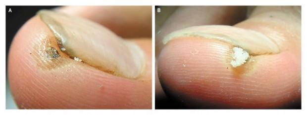 Песчаная блоха (лат. Tunga penetrans) (англ. Chigoe flea or Jigger)