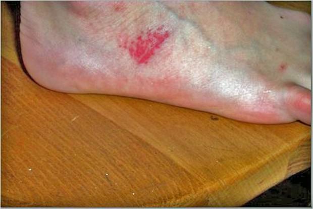 препараты от аллергии крапивницы