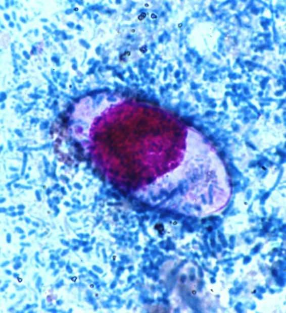 Паразит токсоплазма гонди (лат. Toxoplasma gondii)