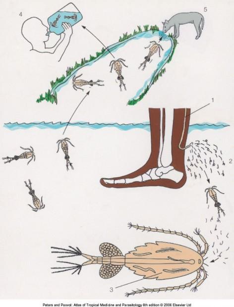 Ришта или гвинейский червь (лат. Dracunculus medinensis) (англ. Fiery serpent or Guinea worm)